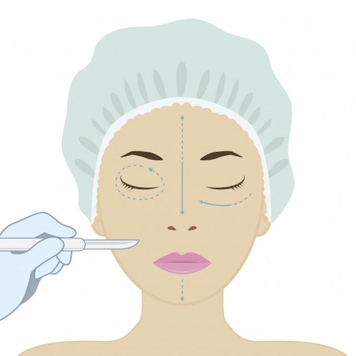 Chirurgia estetica facciale.